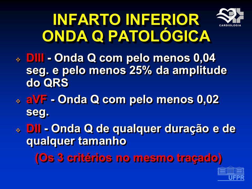 INFARTO INFERIOR ONDA Q PATOLÓGICA DIII - Onda Q com pelo menos 0,04 seg. e pelo menos 25% da amplitude do QRS aVF - Onda Q com pelo menos 0,02 seg. D