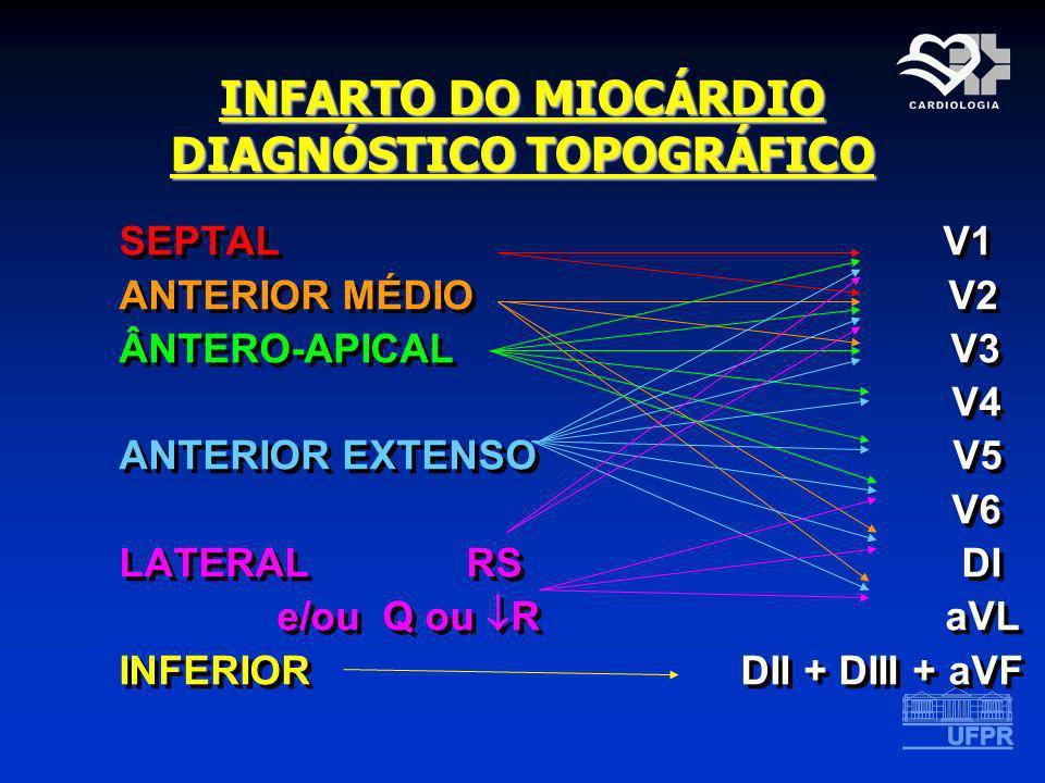 INFARTO DO MIOCÁRDIO DIAGNÓSTICO TOPOGRÁFICO SEPTAL V1 ANTERIOR MÉDIO V2 ÂNTERO-APICAL V3 V4 ANTERIOR EXTENSO V5 V6 LATERAL RS DI e/ou Q ou R aVL INFE
