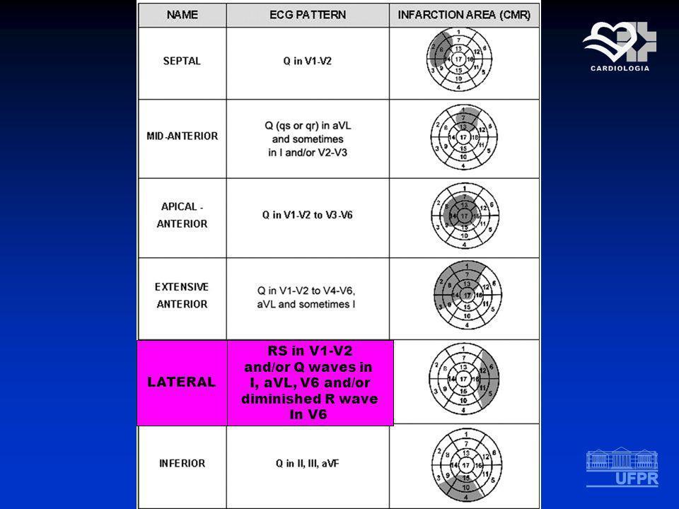 LATERAL RS in V1-V2 and/or Q waves in I, aVL, V6 and/or diminished R wave In V6