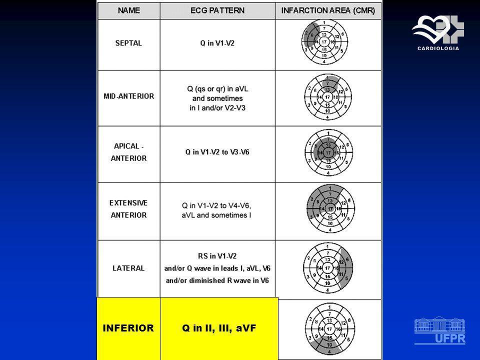 INFERIORQ in II, III, aVF