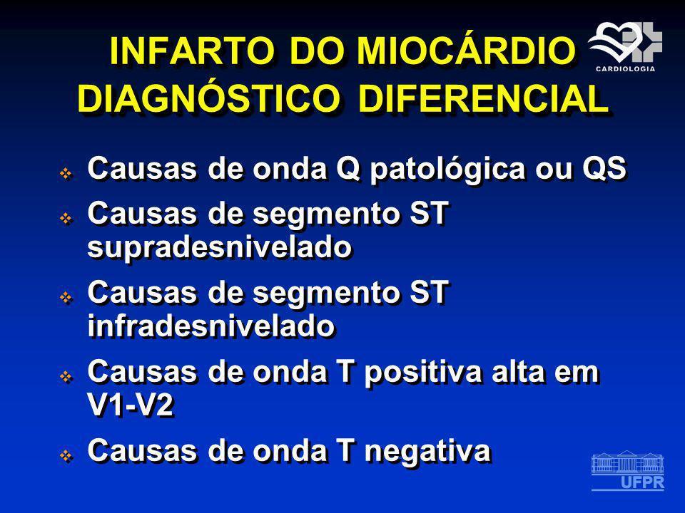 INFARTO DO MIOCÁRDIO DIAGNÓSTICO DIFERENCIAL Causas de onda Q patológica ou QS Causas de segmento ST supradesnivelado Causas de segmento ST infradesni