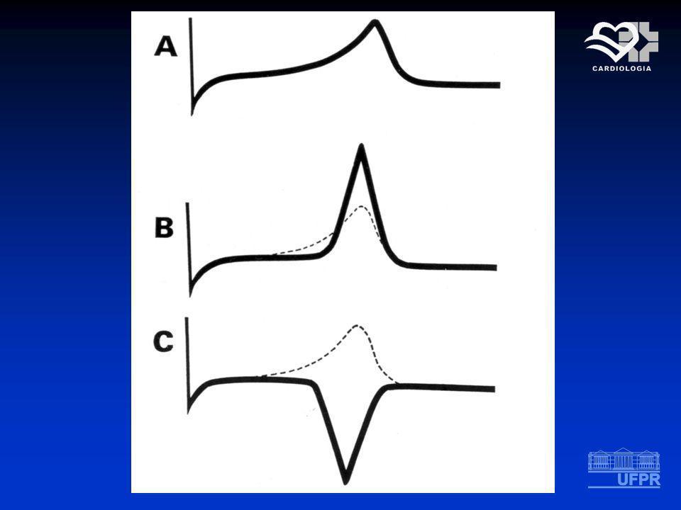 NEQROSE ALTERAÇÕES NO COMPLEXO QRS Desaparecimento total ou parcial da onda R Aparecimento de complexo QRS tipo QS ou com onda Q patológica Predomínio do vetor da parede oposta ALTERAÇÕES NO COMPLEXO QRS Desaparecimento total ou parcial da onda R Aparecimento de complexo QRS tipo QS ou com onda Q patológica Predomínio do vetor da parede oposta