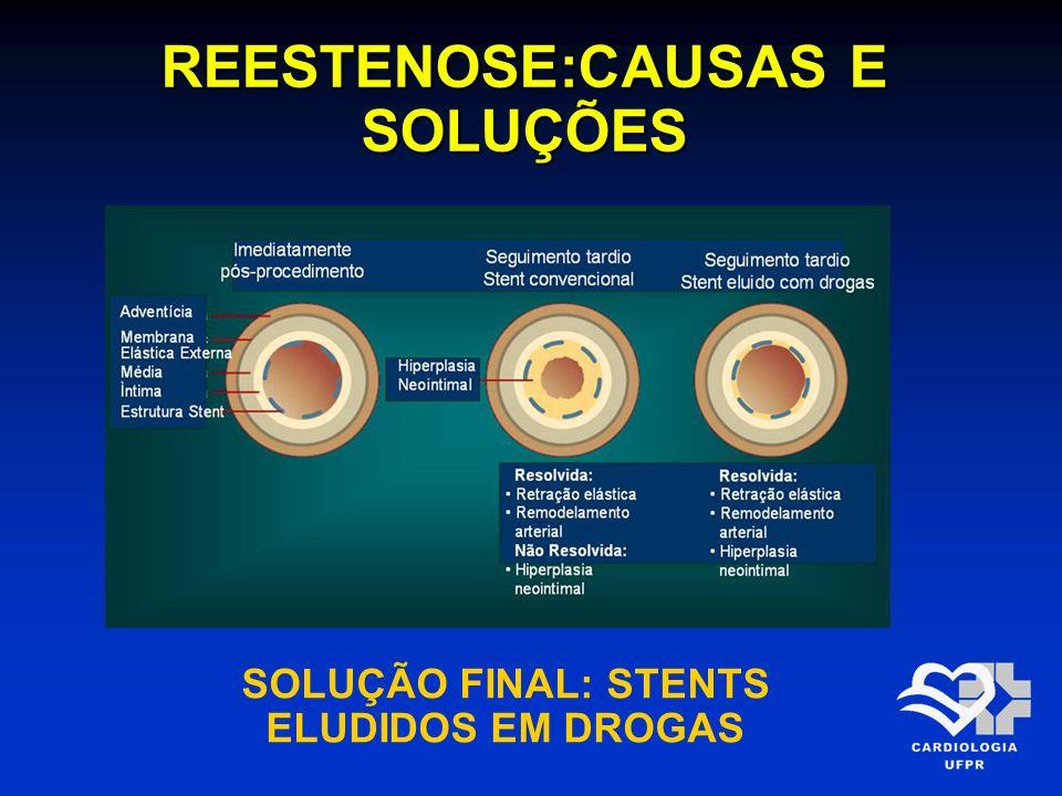REESTENOSE:CAUSAS E SOLUÇÕES SOLUÇÃO FINAL: STENTS ELUDIDOS EM DROGAS