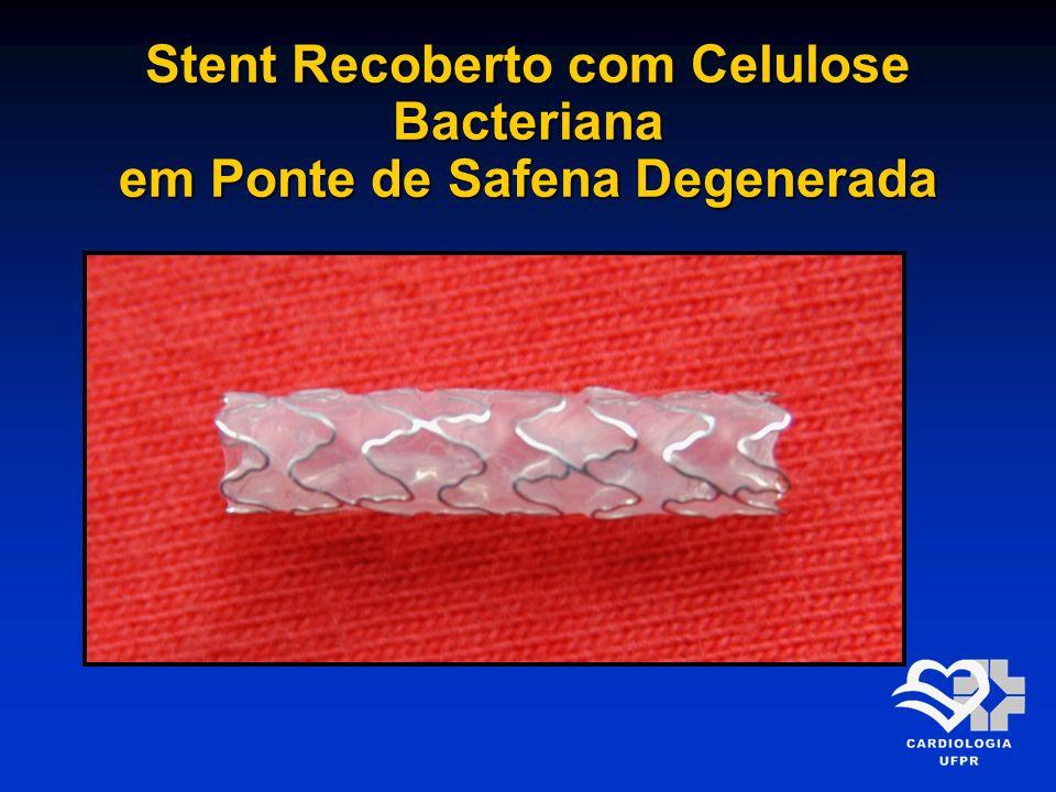 Stent Recoberto com Celulose Bacteriana em Ponte de Safena Degenerada