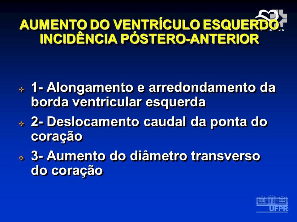 AUMENTO DO VENTRÍCULO ESQUERDO INCIDÊNCIA PÓSTERO-ANTERIOR 1- Alongamento e arredondamento da borda ventricular esquerda 2- Deslocamento caudal da pon