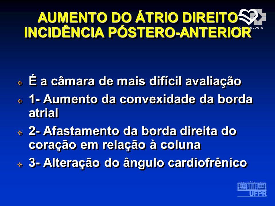 AUMENTO DO ÁTRIO DIREITO INCIDÊNCIA PÓSTERO-ANTERIOR É a câmara de mais difícil avaliação 1- Aumento da convexidade da borda atrial 2- Afastamento da