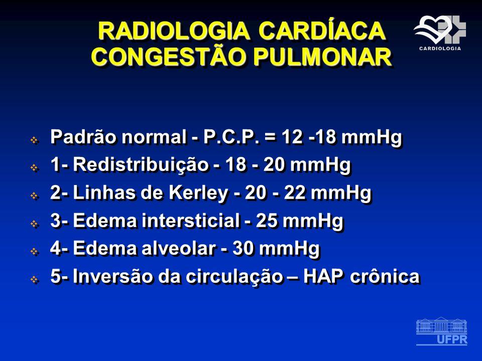 RADIOLOGIA CARDÍACA CONGESTÃO PULMONAR Padrão normal - P.C.P. = 12 -18 mmHg 1- Redistribuição - 18 - 20 mmHg 2- Linhas de Kerley - 20 - 22 mmHg 3- Ede