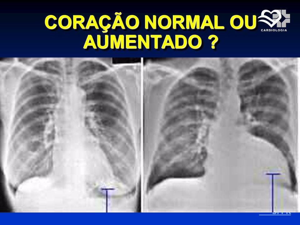 RX na Insuficiência Cardíaca