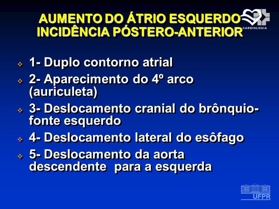 AUMENTO DO ÁTRIO ESQUERDO INCIDÊNCIA PÓSTERO-ANTERIOR 1- Duplo contorno atrial 2- Aparecimento do 4º arco (auriculeta) 3- Deslocamento cranial do brôn