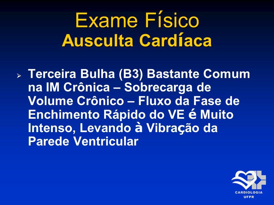 Exame F í sico Ausculta Card í aca Terceira Bulha (B3) Bastante Comum na IM Crônica – Sobrecarga de Volume Crônico – Fluxo da Fase de Enchimento Rápid