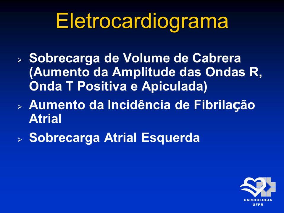Eletrocardiograma Sobrecarga de Volume de Cabrera (Aumento da Amplitude das Ondas R, Onda T Positiva e Apiculada) Aumento da Incidência de Fibrila ç ã