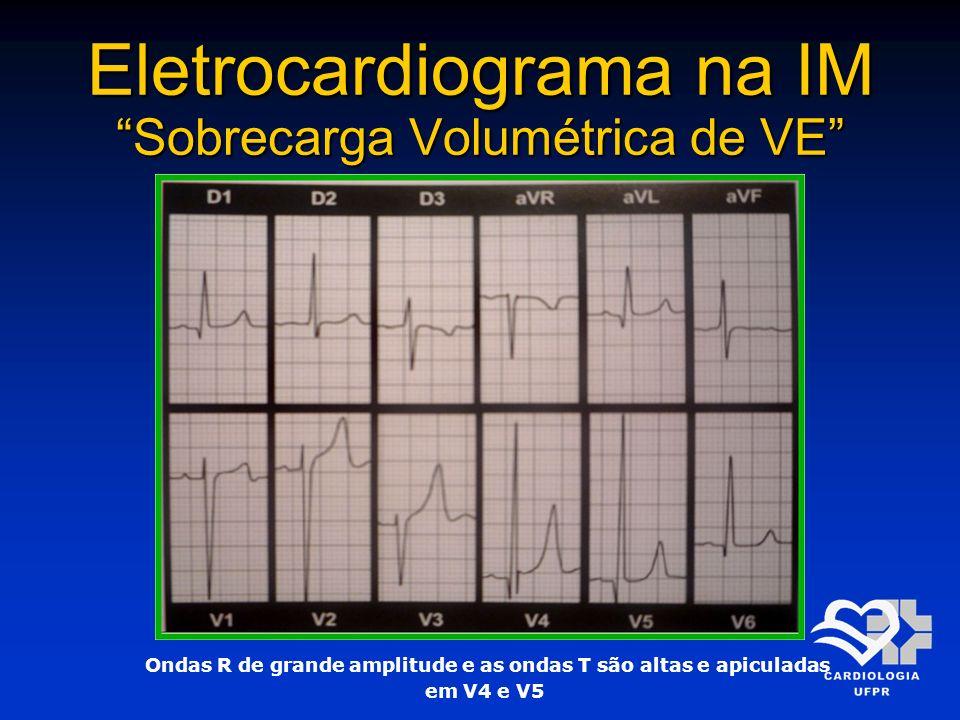 Eletrocardiograma na IM Sobrecarga Volumétrica de VE Ondas R de grande amplitude e as ondas T são altas e apiculadas em V4 e V5