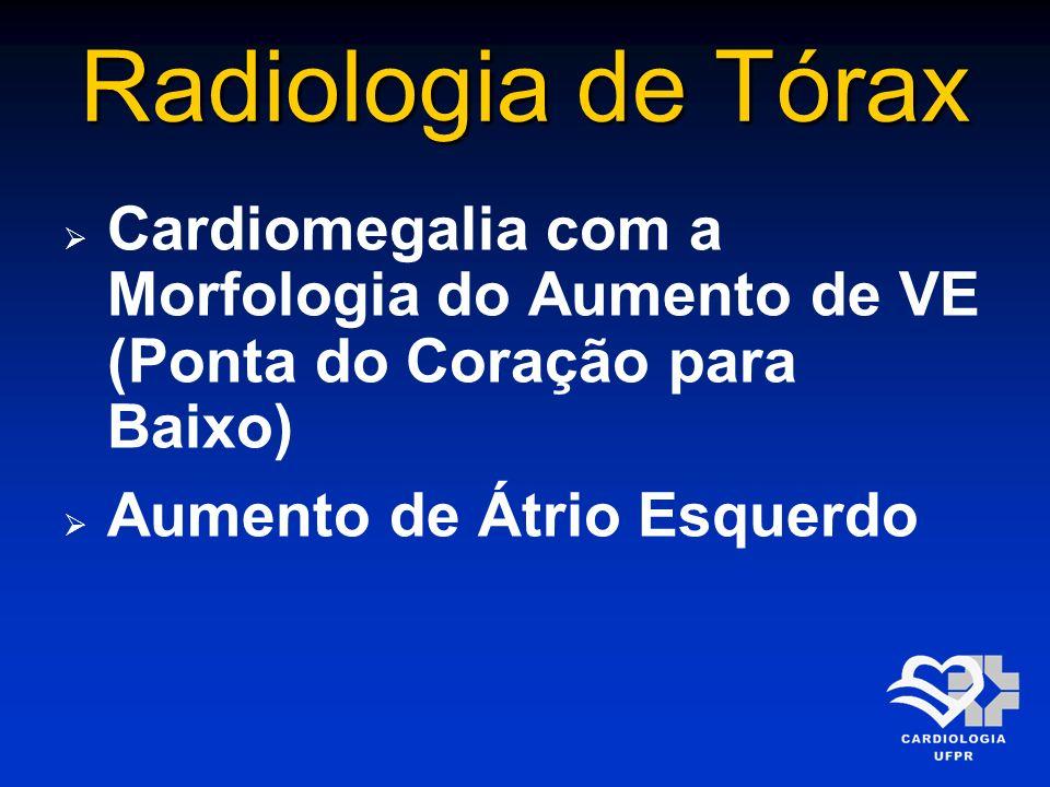 Radiologia de Tórax Cardiomegalia com a Morfologia do Aumento de VE (Ponta do Coração para Baixo) Aumento de Átrio Esquerdo