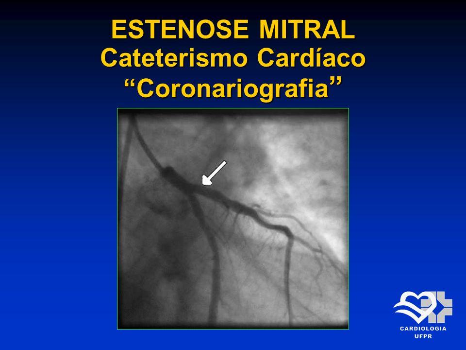 ESTENOSE MITRAL Cateterismo Cardíaco Coronariografia ESTENOSE MITRAL Cateterismo Cardíaco Coronariografia