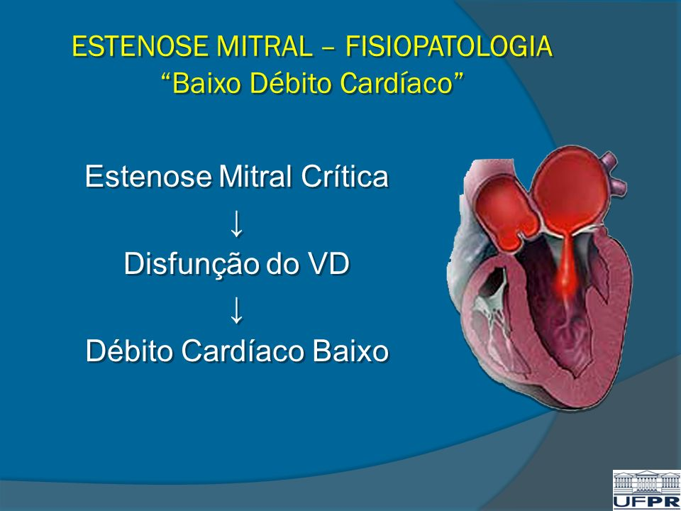 ESTENOSE MITRAL – FISIOPATOLOGIA Baixo Débito Cardíaco Estenose Mitral Crítica Disfunção do VD Débito Cardíaco Baixo Estenose Mitral Crítica Disfunção