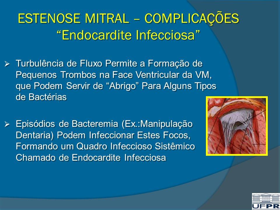ESTENOSE MITRAL – COMPLICAÇÕES Endocardite Infecciosa Turbulência de Fluxo Permite a Formação de Pequenos Trombos na Face Ventricular da VM, que Podem