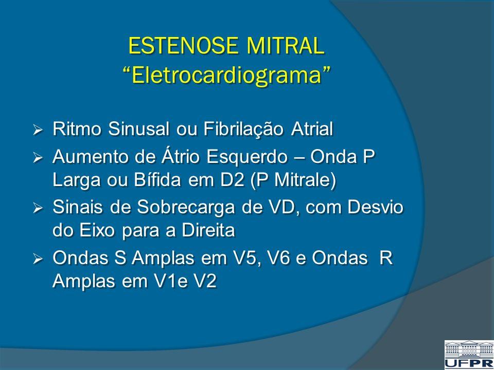 ESTENOSE MITRAL Eletrocardiograma Ritmo Sinusal ou Fibrilação Atrial Aumento de Átrio Esquerdo – Onda P Larga ou Bífida em D2 (P Mitrale) Sinais de So