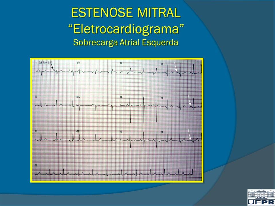 ESTENOSE MITRAL Eletrocardiograma Sobrecarga Atrial Esquerda