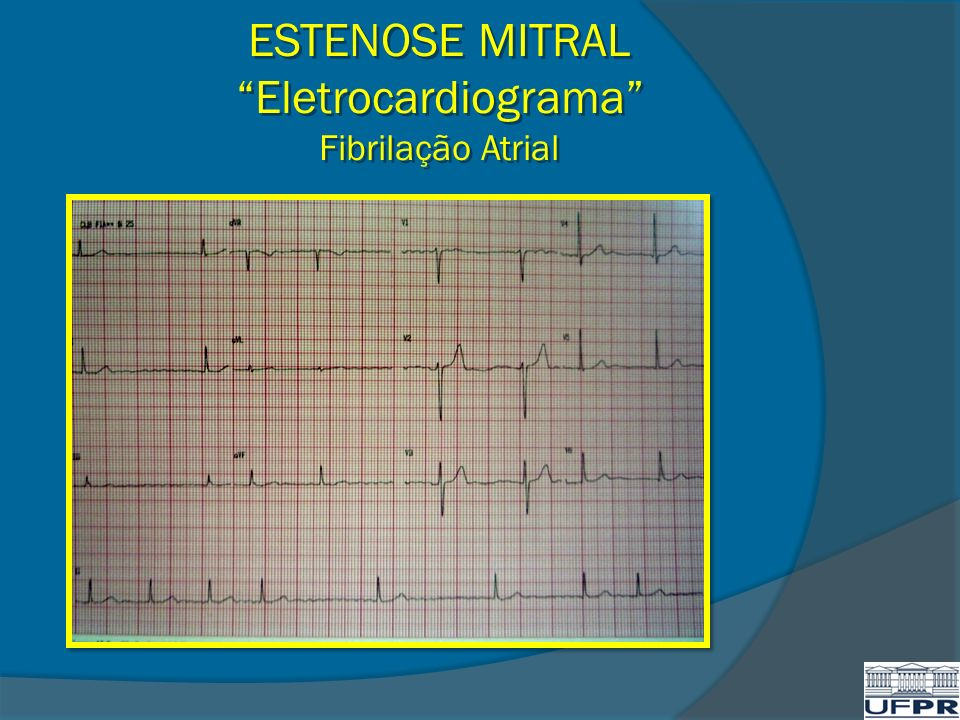 ESTENOSE MITRAL Eletrocardiograma Fibrilação Atrial