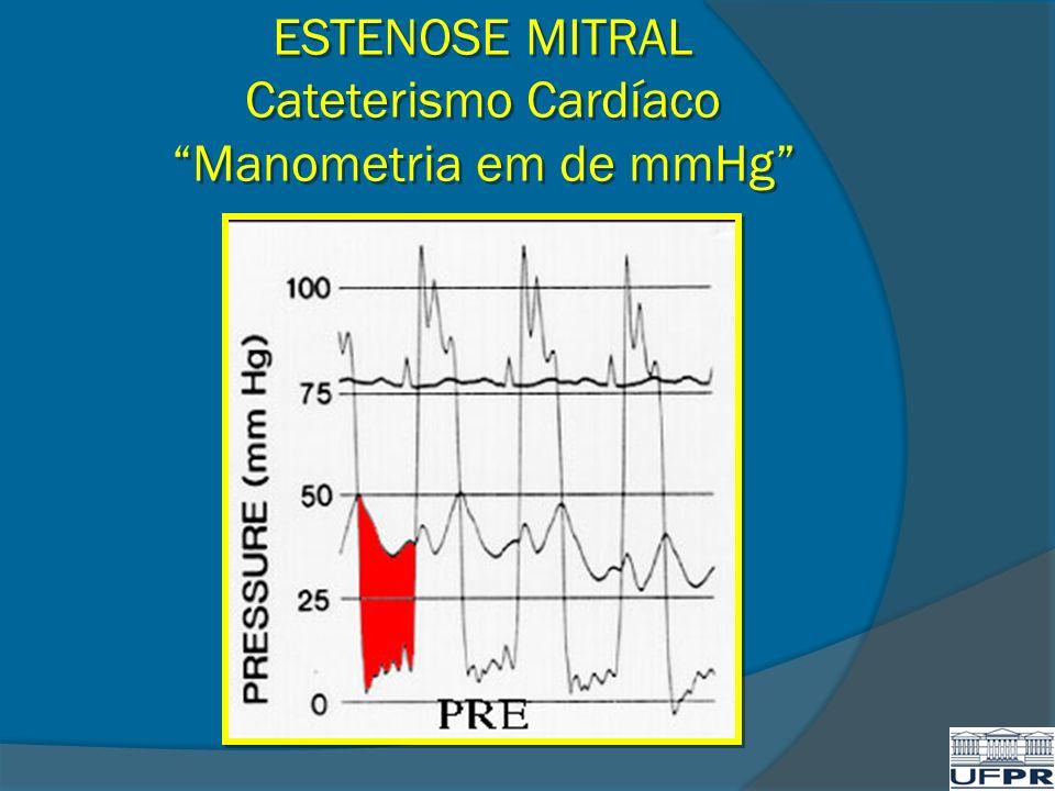 ESTENOSE MITRAL Cateterismo Cardíaco Manometria em de mmHg