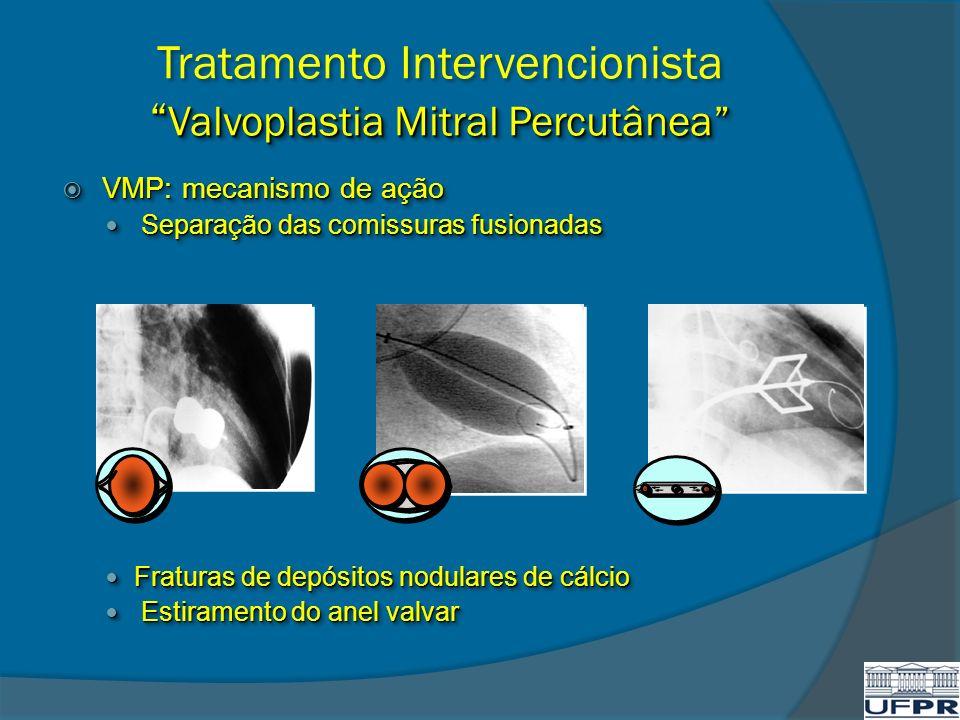 Valvoplastia Mitral Percutânea Tratamento Intervencionista Valvoplastia Mitral Percutânea VMP: mecanismo de ação VMP: mecanismo de ação Separação das