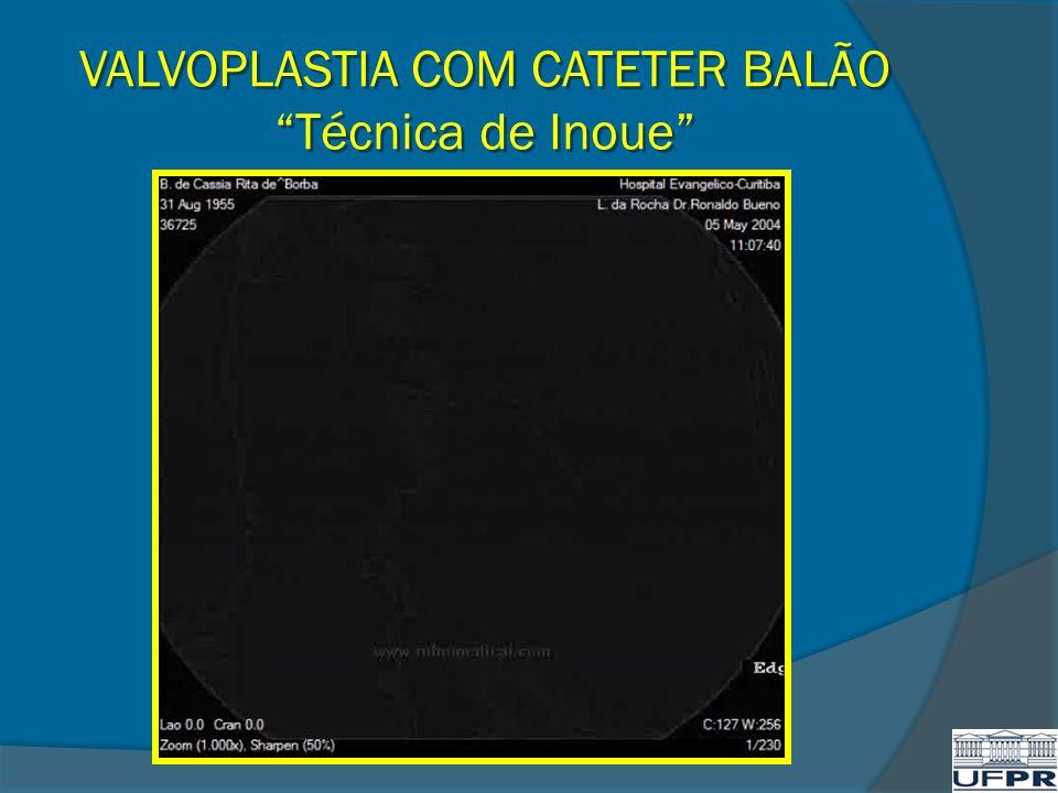 VALVOPLASTIA COM CATETER BALÃO Técnica de Inoue