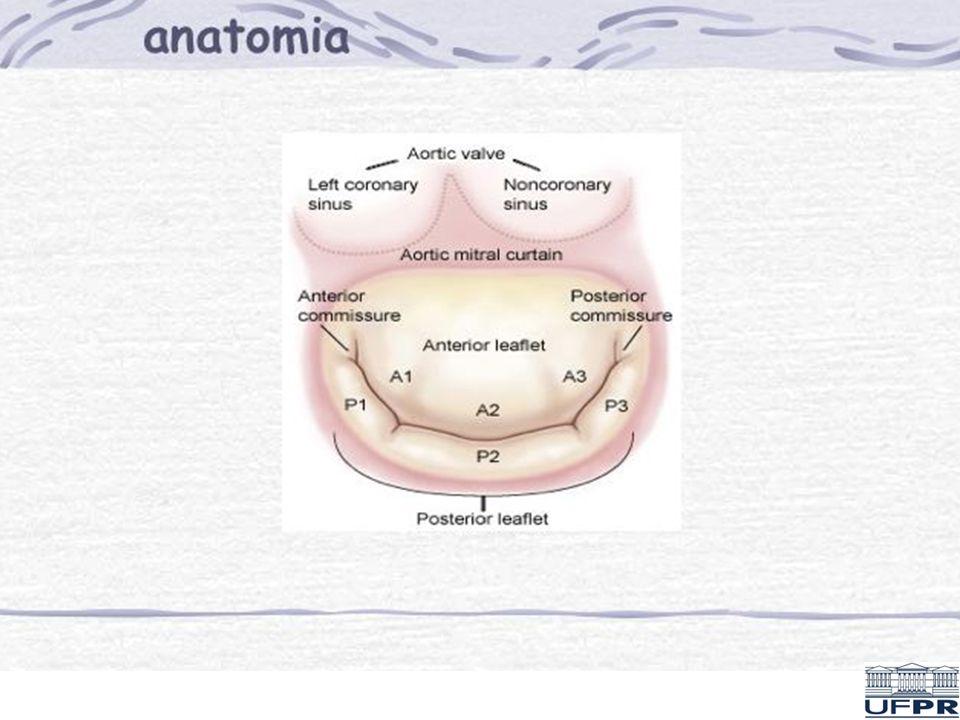 ESTENOSE MITRAL - DEFINIÇÃO Condição em que, pela restrição à abertura dos folhetos valvares, há uma redução da área valvar mitral, levando à formação de um gradiente de pressão entre a pressão média de átrio esquerdo e a pressão diastólica final do ventrículo esquerdo (PD2)