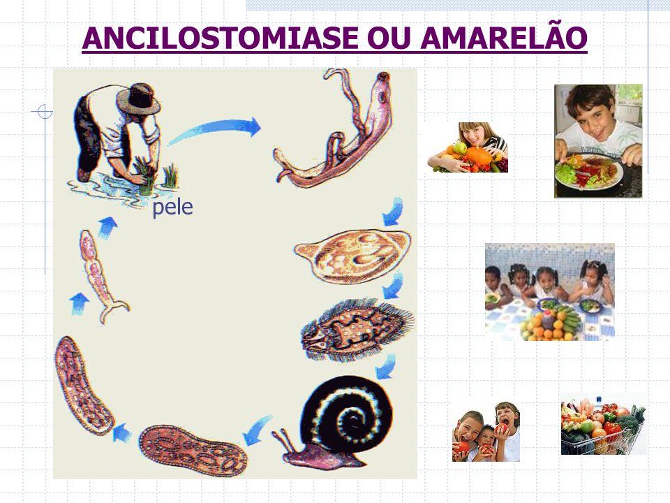 ANCILOSTOMIASE OU AMARELÃO pele