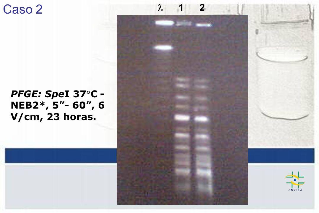 1 2 PFGE: SpeI 37C - NEB2*, 5- 60, 6 V/cm, 23 horas. Caso 2
