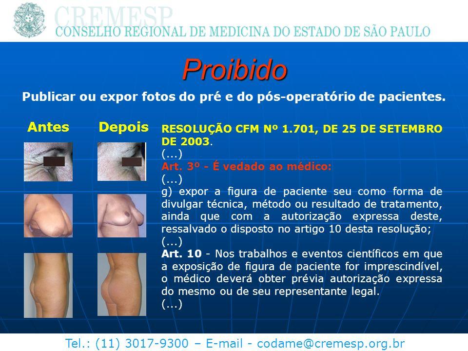 Tel.: (11) 3017-9300 – E-mail - codame@cremesp.org.br Proibido Publicar ou expor fotos do pré e do pós-operatório de pacientes. AntesDepois RESOLUÇÃO