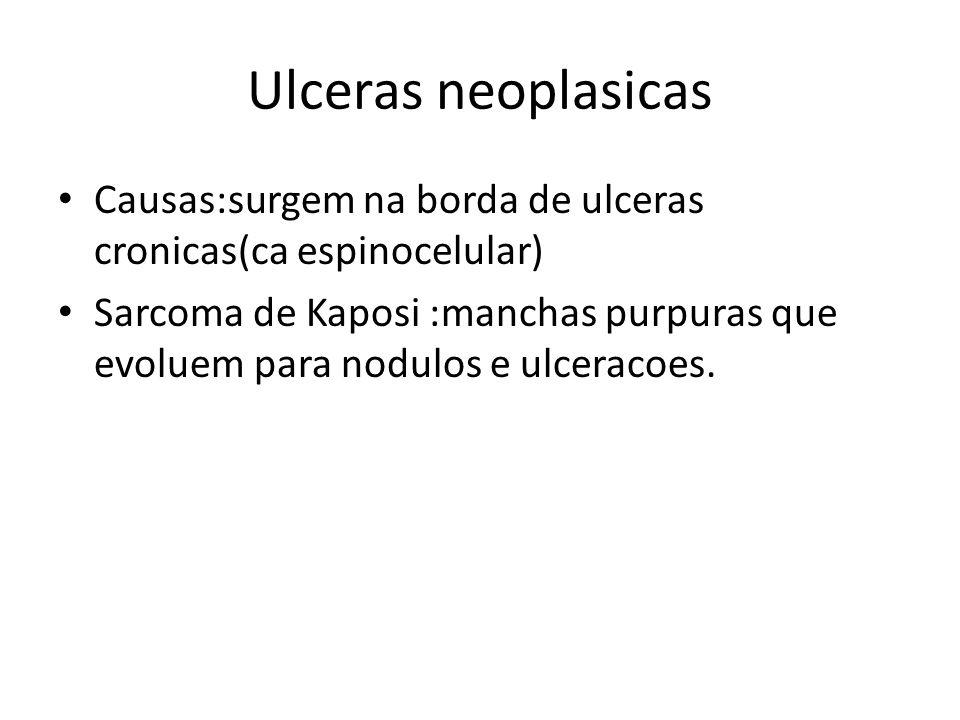 Ulceras neoplasicas Causas:surgem na borda de ulceras cronicas(ca espinocelular) Sarcoma de Kaposi :manchas purpuras que evoluem para nodulos e ulcera