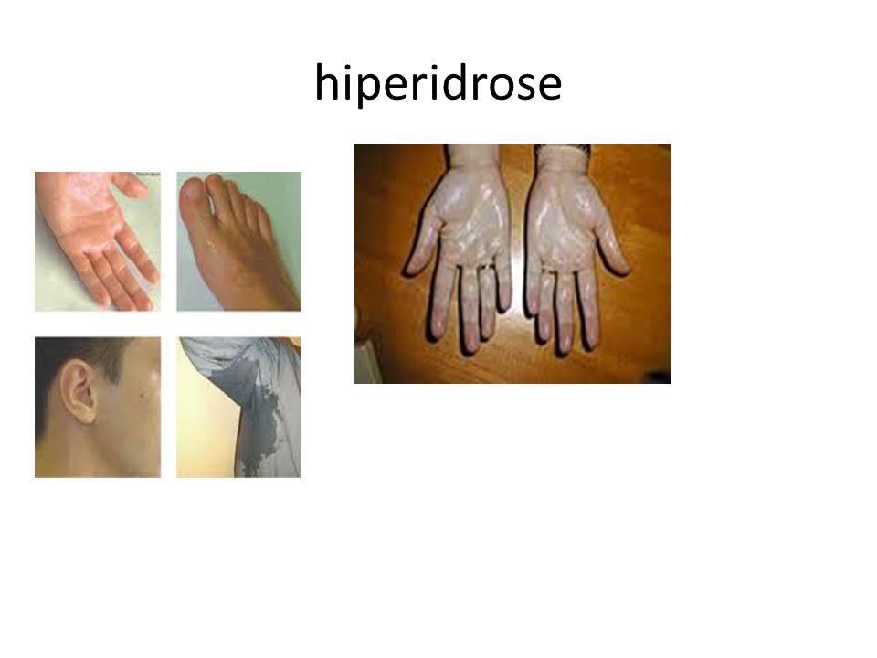 hiperidrose