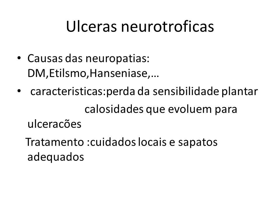 Ulceras neurotroficas Causas das neuropatias: DM,Etilsmo,Hanseniase,… caracteristicas:perda da sensibilidade plantar calosidades que evoluem para ulce