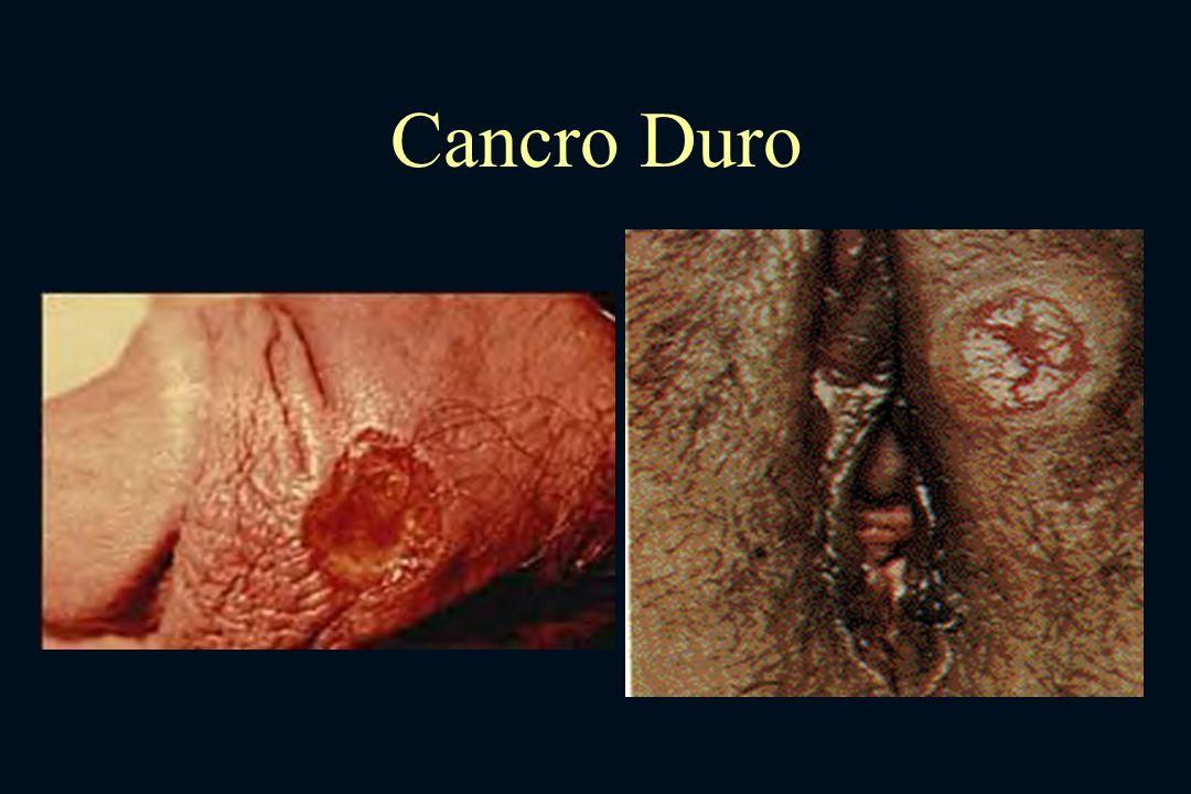 Cancro Duro