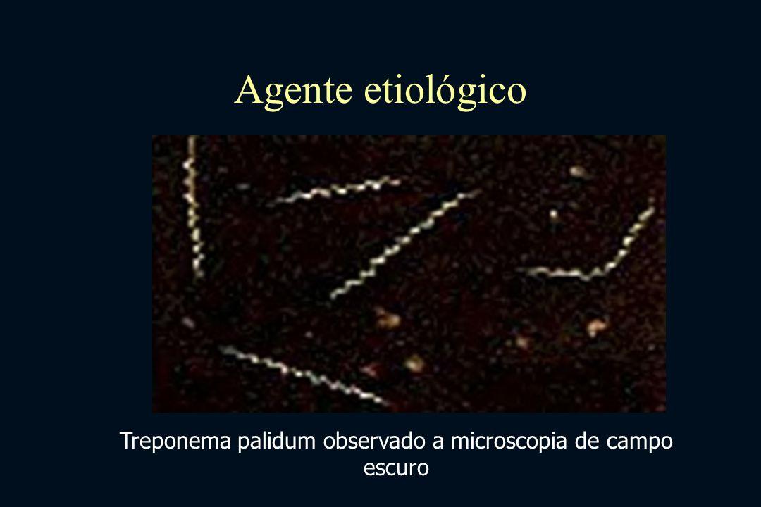 Agente etiológico Treponema palidum observado a microscopia de campo escuro