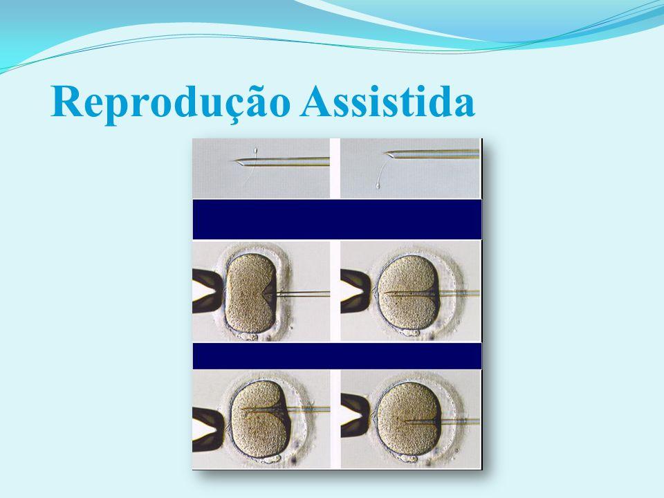 Doação de óvulos Sem remuneração FIGO Committee for the Ethical Aspects of Human Reproduction and Women s Health.
