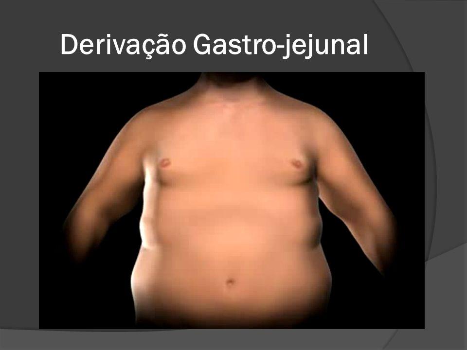 Derivação Gastro-jejunal