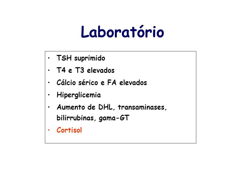 Laboratório TSH suprimido T4 e T3 elevados Cálcio sérico e FA elevados Hiperglicemia Aumento de DHL, transaminases, bilirrubinas, gama-GT Cortisol