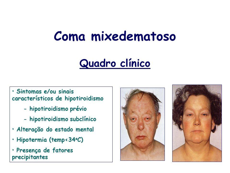 Coma mixedematoso Quadro clínico Sintomas e/ou sinais característicos de hipotiroidismo Sintomas e/ou sinais característicos de hipotiroidismo - hipot