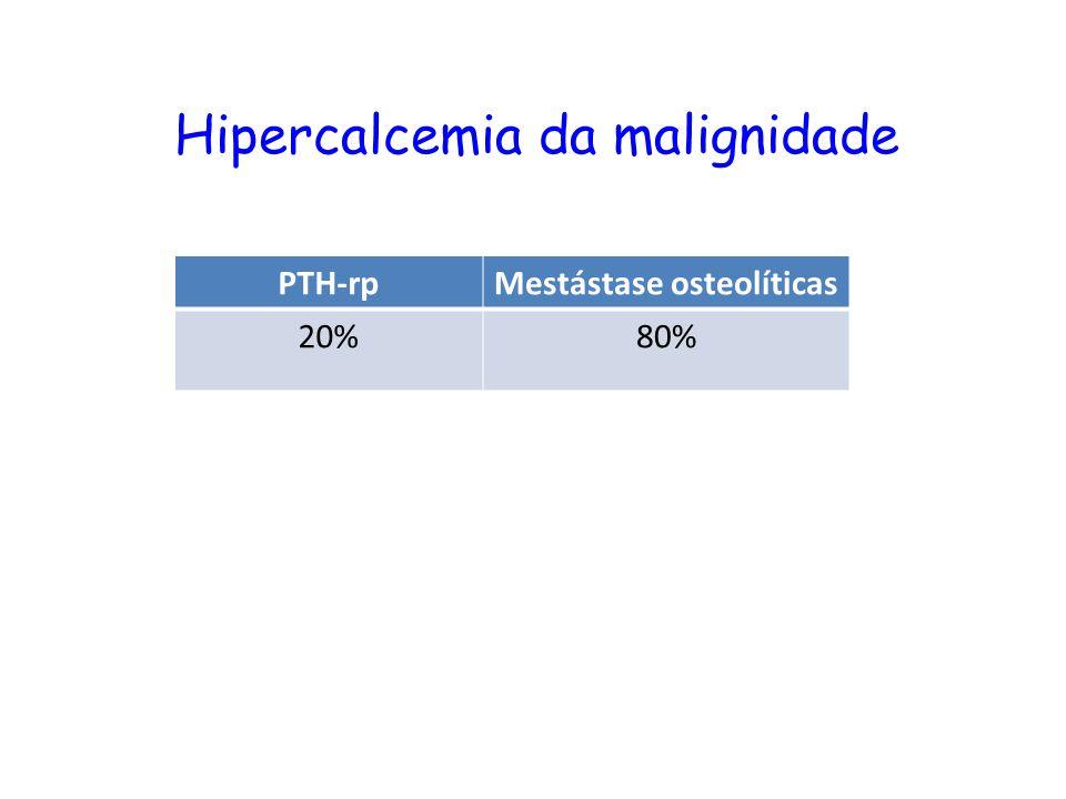 Hipercalcemia da malignidade PTH-rpMestástase osteolíticas 20%80%
