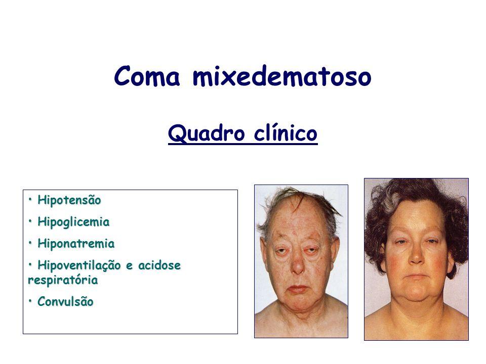 Coma mixedematoso Quadro clínico Hipotensão Hipotensão Hipoglicemia Hipoglicemia Hiponatremia Hiponatremia Hipoventilação e acidose respiratória Hipov