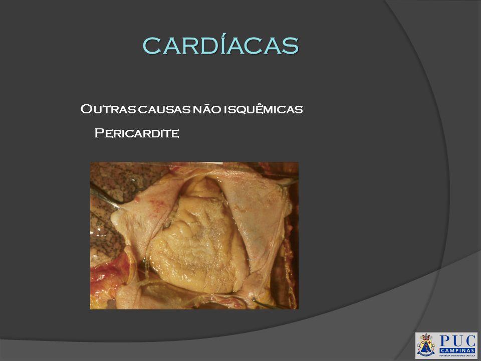CARDÍACAS Outras causas não isquêmicas Pericardite