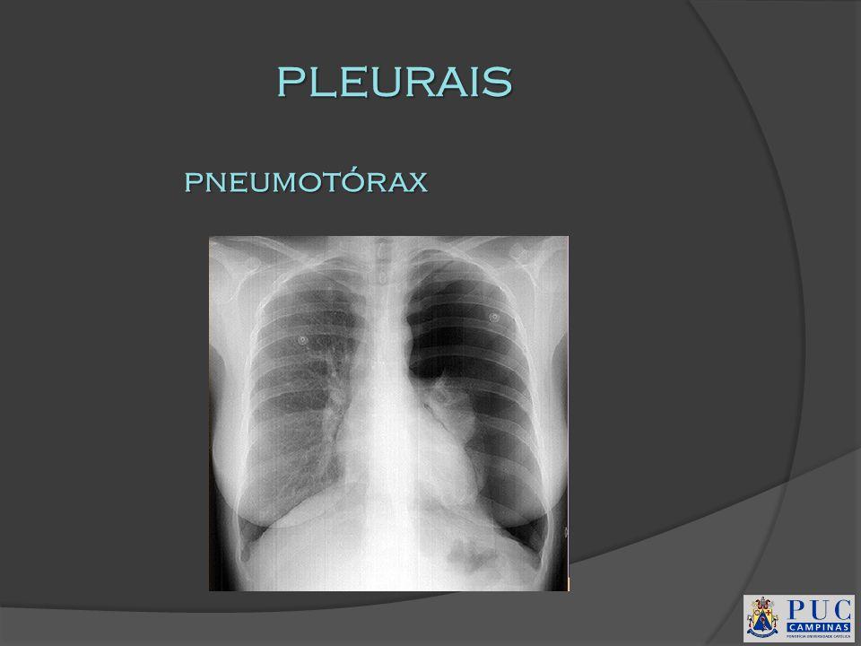 PLEURAIS pneumotórax