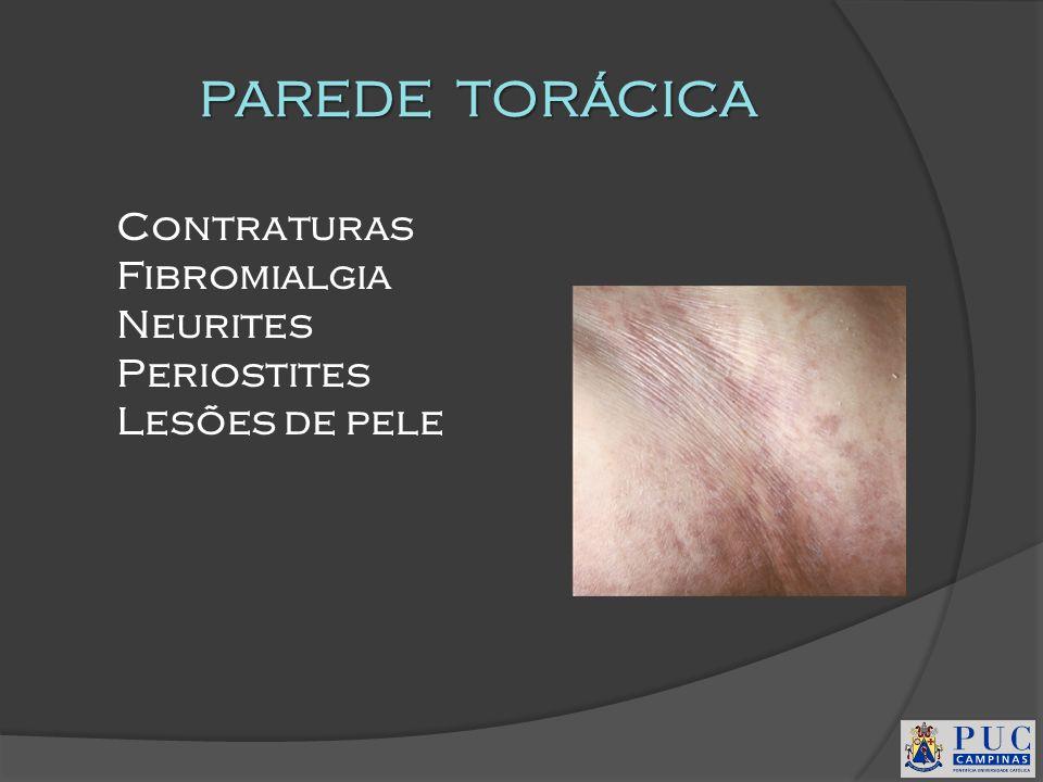 PAREDE TORÁCICA Contraturas Fibromialgia Neurites Periostites Lesões de pele