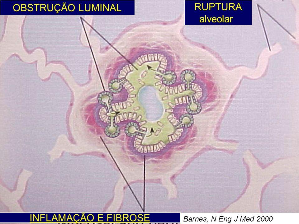 OBSTRUÇÃO LUMINAL INFLAMAÇÃO E FIBROSE RUPTURA alveolar Barnes, N Eng J Med 2000