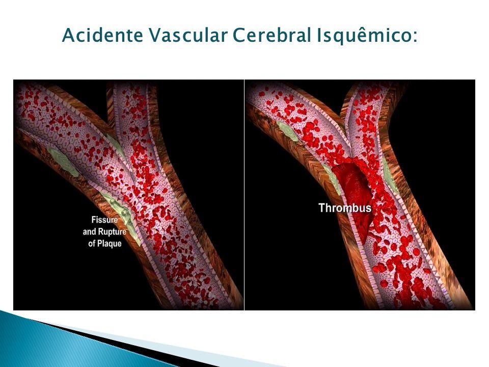 Diminuição do fluxo sangüíneo cerebral Diminuição da oferta de oxigênio e glicose Diminuição do pH intracelular Alteração da bomba Na+ - Ca2+ - aumento Ca2+ intracelular Radicais livres, quebra de barreira, resposta inflamatória – INCHAÇO CEREBRAL Área de penumbra Tempo de isquemia/déficit permanente = 6hs