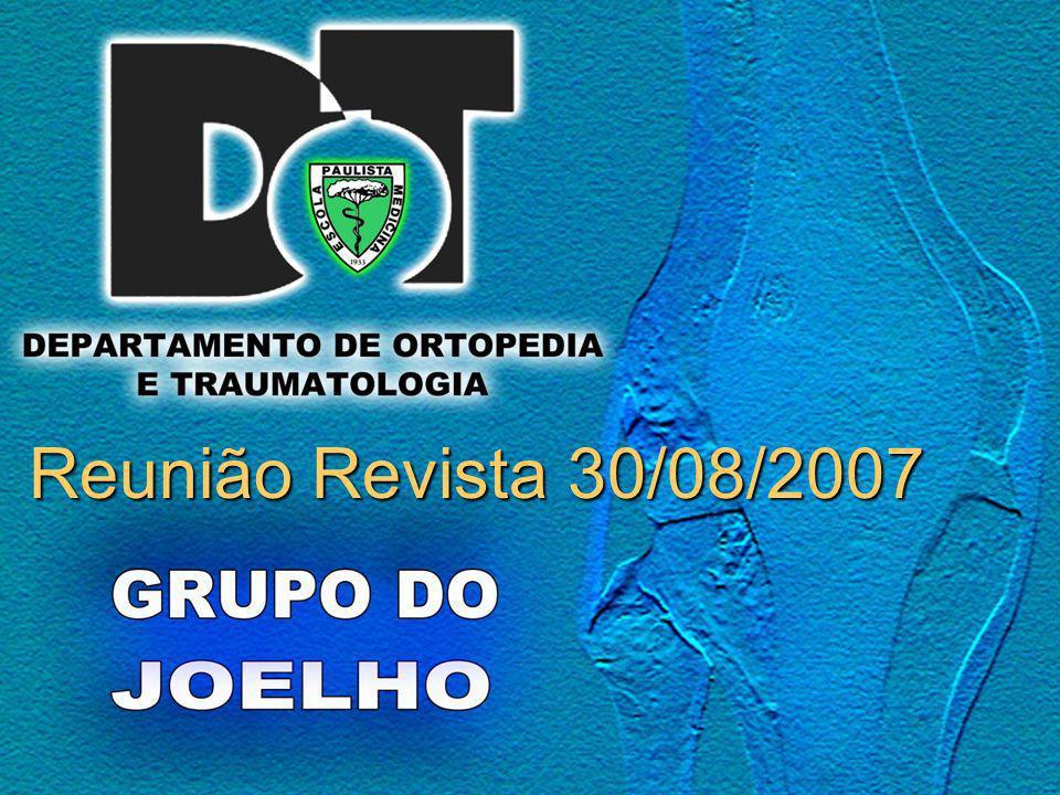 Desgate e Osteólise em Artroplastia Total de Joelho Douglas D.R.