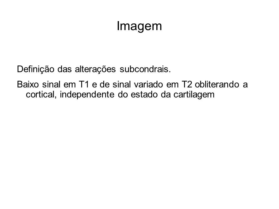 Imagem Definição das alterações subcondrais. Baixo sinal em T1 e de sinal variado em T2 obliterando a cortical, independente do estado da cartilagem