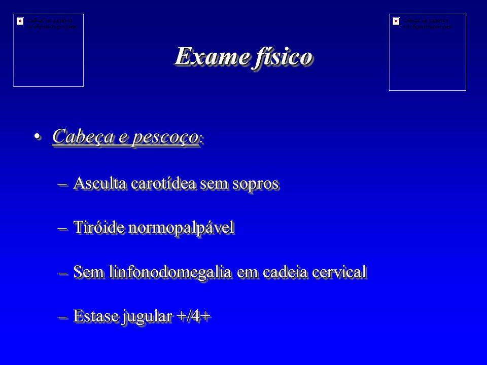 Exame físico Cabeça e pescoço :Cabeça e pescoço : –Asculta carotídea sem sopros –Tiróide normopalpável –Sem linfonodomegalia em cadeia cervical –Estase jugular +/4+ Cabeça e pescoço :Cabeça e pescoço : –Asculta carotídea sem sopros –Tiróide normopalpável –Sem linfonodomegalia em cadeia cervical –Estase jugular +/4+
