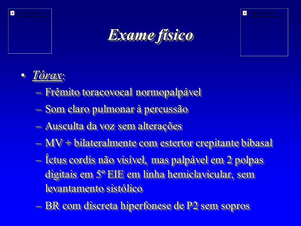 Exame físico Tórax :Tórax : –Frêmito toracovocal normopalpável –Som claro pulmonar à percussão –Ausculta da voz sem alterações –MV + bilateralmente com estertor crepitante bibasal –Íctus cordis não visível, mas palpável em 2 polpas digitais em 5º EIE em linha hemiclavicular, sem levantamento sistólico –BR com discreta hiperfonese de P2 sem sopros Tórax :Tórax : –Frêmito toracovocal normopalpável –Som claro pulmonar à percussão –Ausculta da voz sem alterações –MV + bilateralmente com estertor crepitante bibasal –Íctus cordis não visível, mas palpável em 2 polpas digitais em 5º EIE em linha hemiclavicular, sem levantamento sistólico –BR com discreta hiperfonese de P2 sem sopros